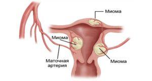 Лечение маленькой миомы