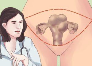 Удаление миомы матки