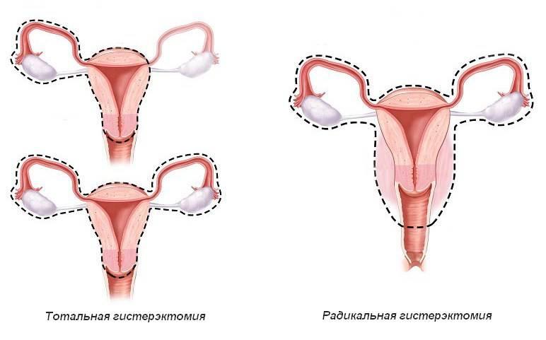 Экстирпация матки в картинках